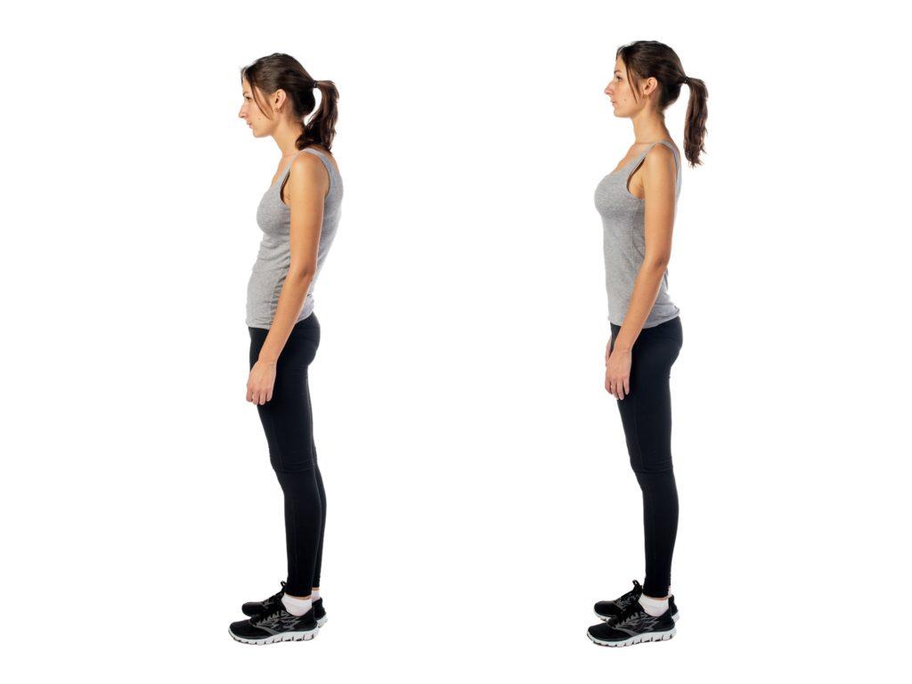 posture-therapists-brooklyn-new-york