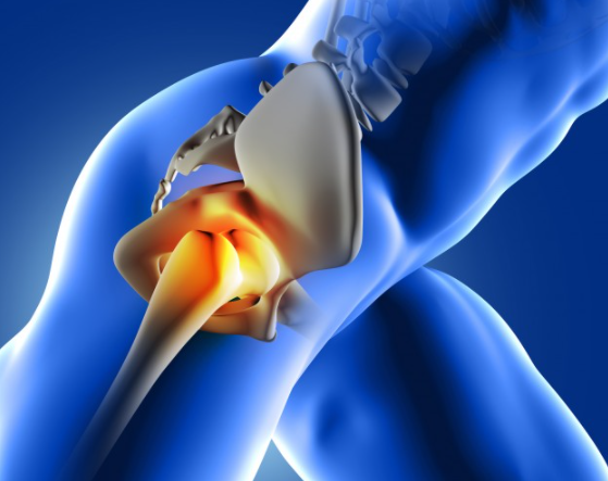 Common Hip Injuries And How To Avoid Them